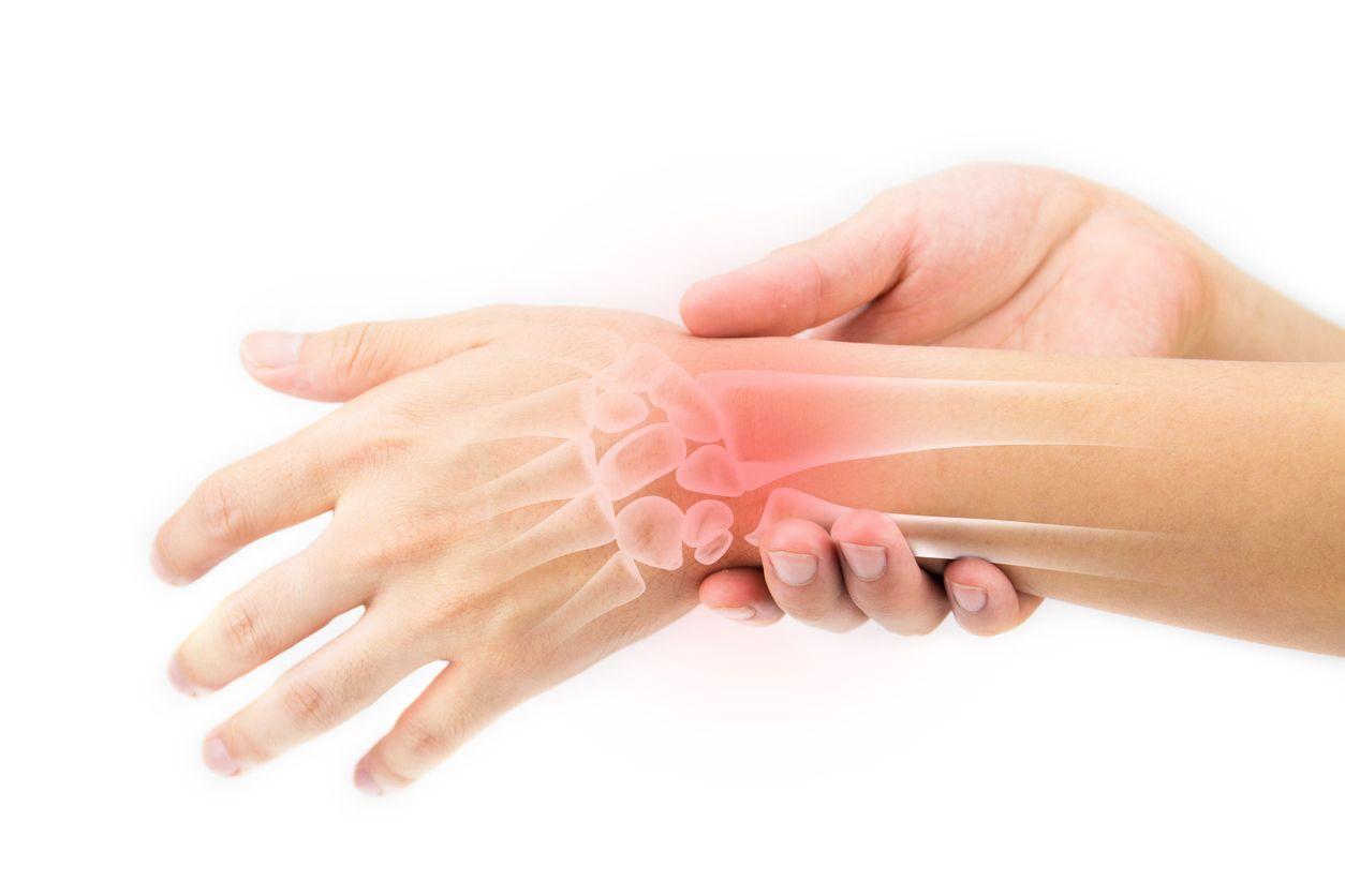 Изображение - Артроз лучезапястного сустава рентген pri-sinovite-proishodit-vospalenie-sinovialnoy-obo