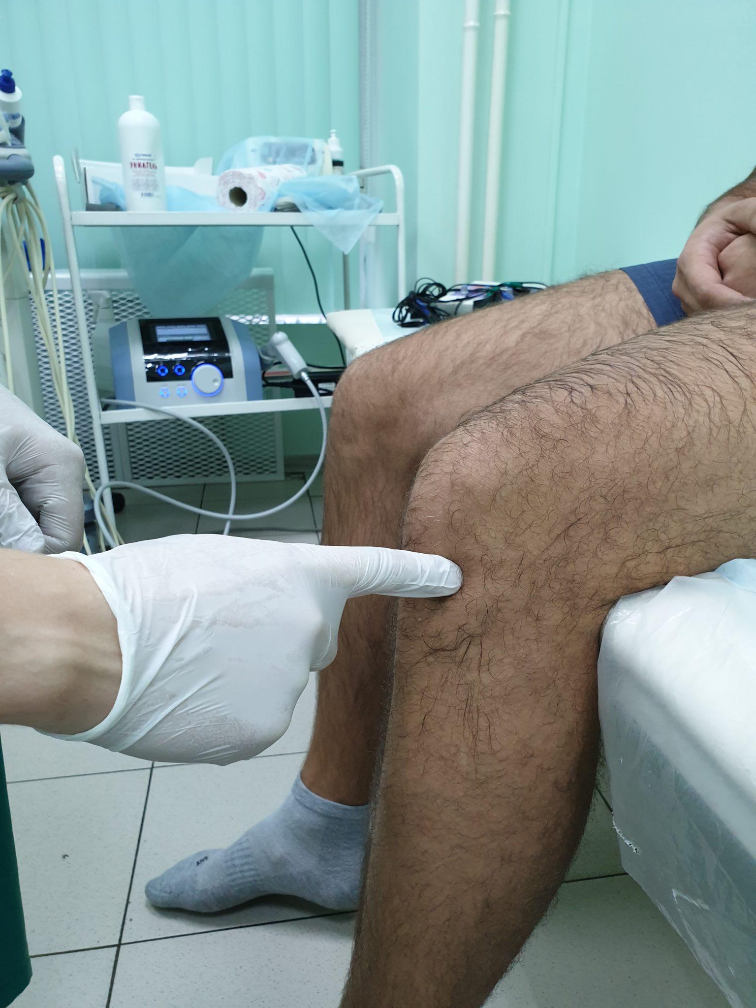Укол гиалуроновой кислоты в суставов